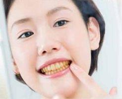 歯の黄ばみ